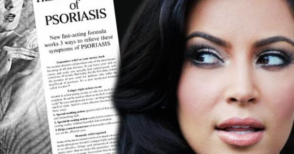 Kim Kardashian covers up her psoriasis